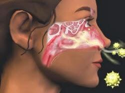 Rinite-alérgica-tratamento
